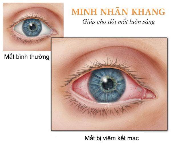 Triệu chứng viêm kết mạc phổ biến: Đỏ mắt